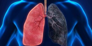 pulmão fumante